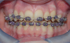 Time to end 'bidding wars' for NHS orthodontics – Dentistry.co.uk