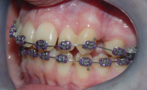braces up close in mouth